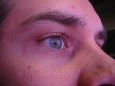 resulting eye light