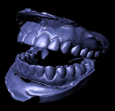 Slide44_BlueTeeth